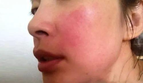 换季皮肤爱过敏,反反复复怎么办?